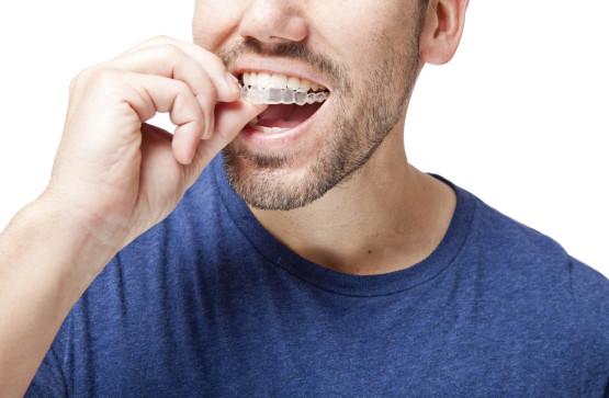 orthodontie adulte reims